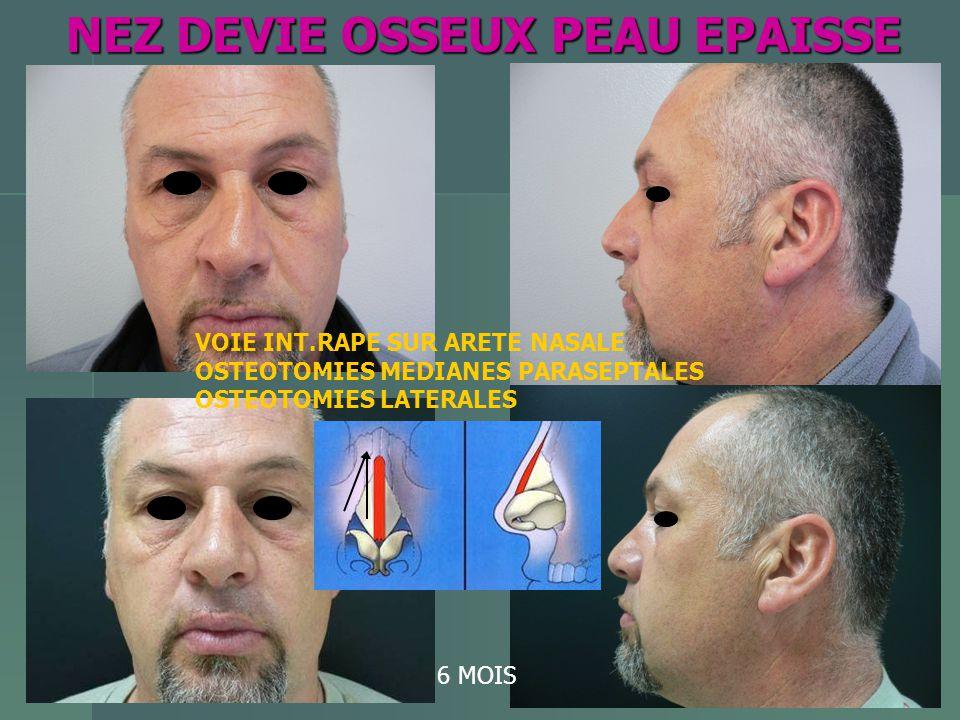 NEZ DEVIE OSSEUX PEAU EPAISSE NEZ DEVIE OSSEUX PEAU EPAISSE 6 MOIS VOIE INT.RAPE SUR ARETE NASALE OSTEOTOMIES MEDIANES PARASEPTALES OSTEOTOMIES LATERA