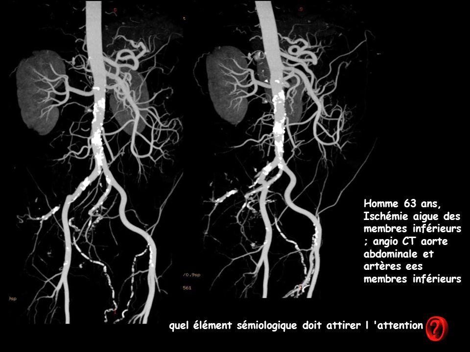 Homme 63 ans, Ischémie aigue des membres inférieurs ; angio CT aorte abdominale et artères ees membres inférieurs quel élément sémiologique doit attirer l attention