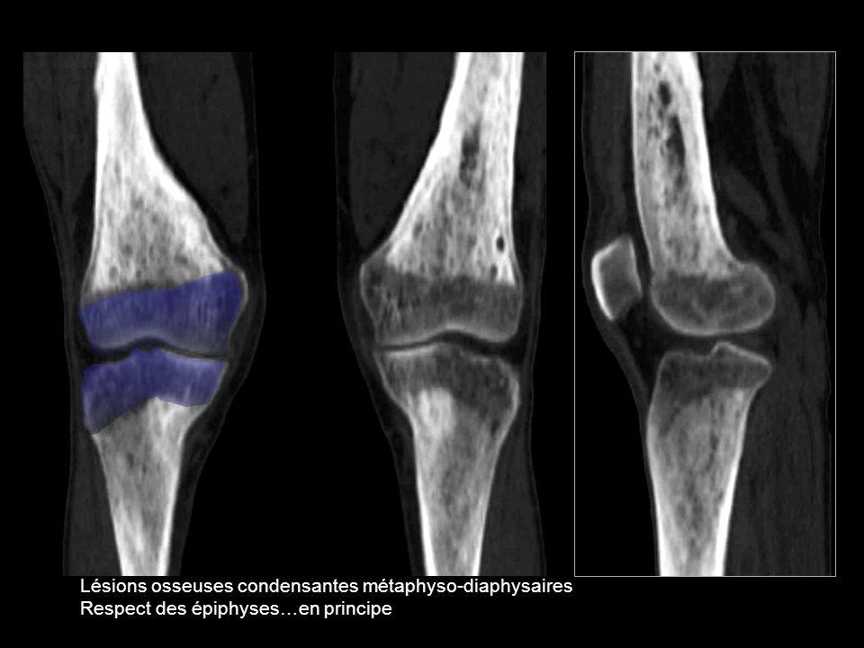 Lésions osseuses condensantes métaphyso-diaphysaires Respect des épiphyses…en principe