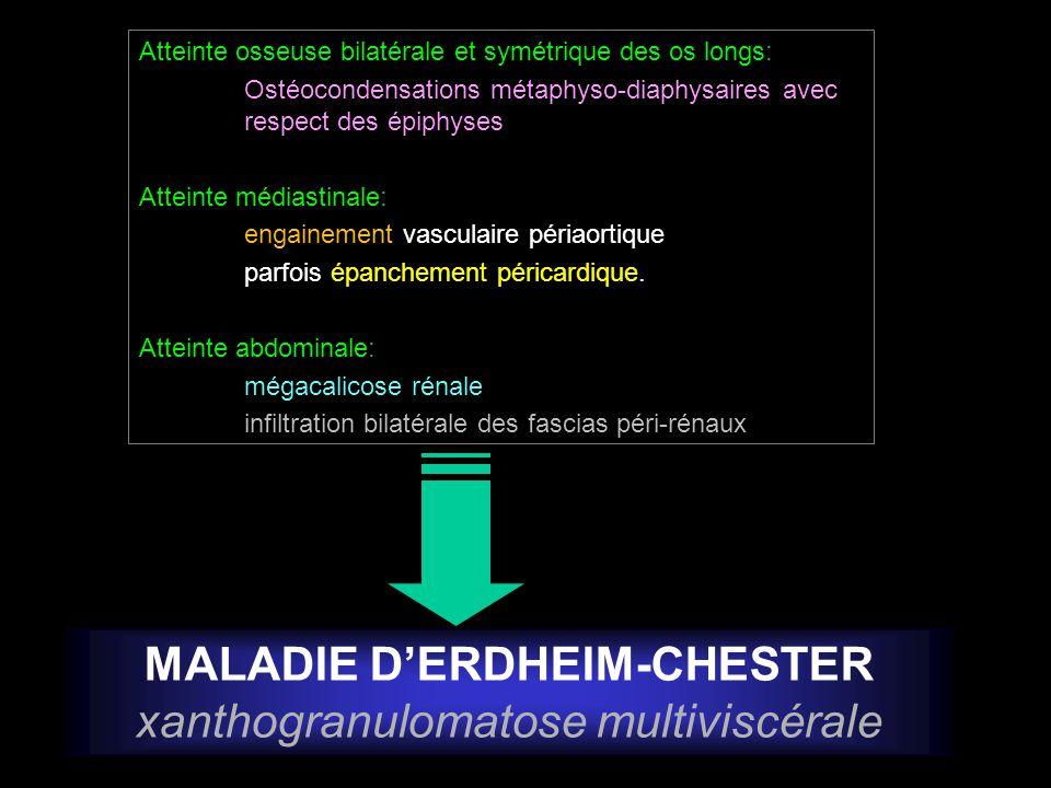 Atteinte osseuse bilatérale et symétrique des os longs: Ostéocondensations métaphyso-diaphysaires avec respect des épiphyses Atteinte médiastinale: en