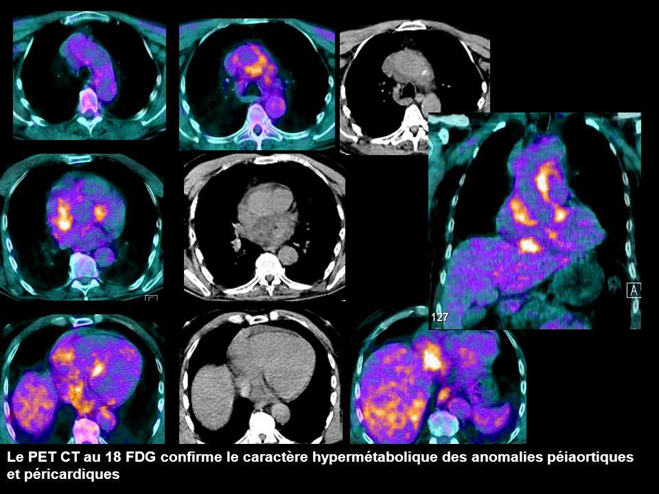 Le PET CT au 18 FDG confirme le caractère hypermétabolique des anomalies péiaortiques et péricardiques