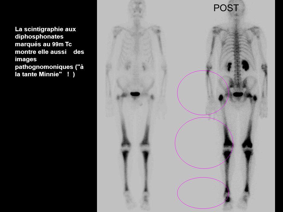 ANTPOST La scintigraphie aux diphosphonates marqués au 99m Tc montre elle aussi des images pathognomoniques (