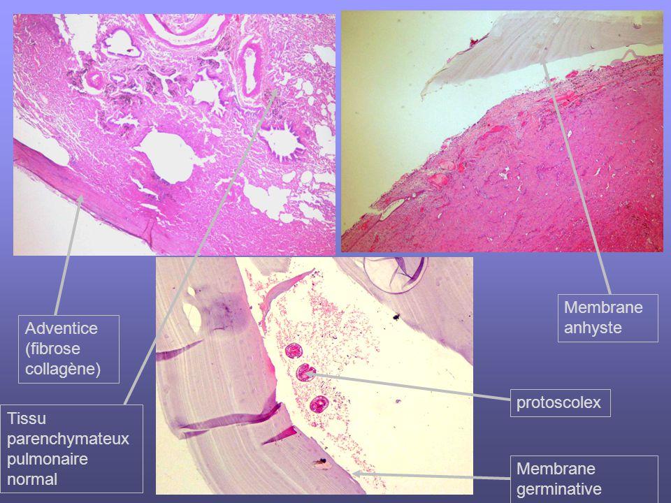 Tissu parenchymateux pulmonaire normal Adventice (fibrose collagène) Membrane anhyste protoscolex Membrane germinative