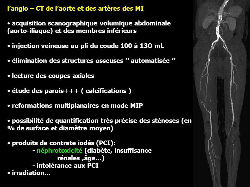 l'angio – CT de l'aorte et des artères des MI acquisition scanographique volumique abdominale (aorto-iliaque) et des membres inférieurs injection veineuse au pli du coude 100 à 13O mL élimination des structures osseuses '' automatisée '' lecture des coupes axiales étude des parois+++ ( calcifications ) reformations multiplanaires en mode MIP possibilité de quantification très précise des sténoses (en % de surface et diamètre moyen) produits de contrate iodés (PCI): - néphrotoxicité (diabète, insuffisance rénales,âge…) - intolérance aux PCI irradiation…