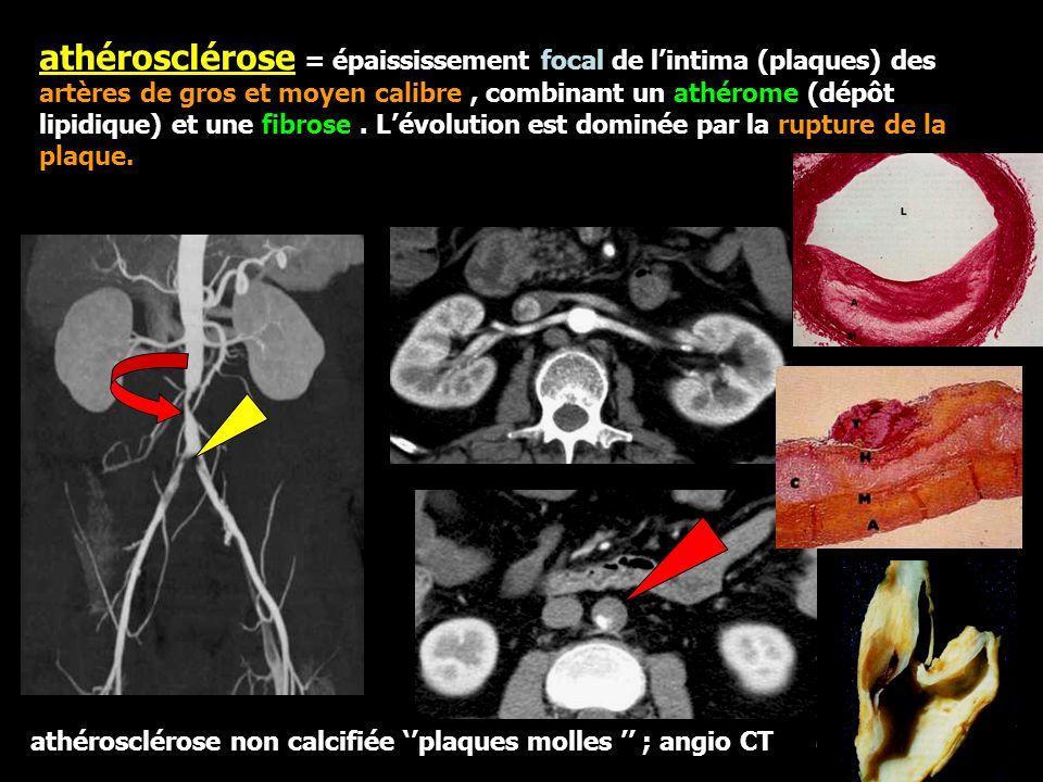 athérosclérose = épaississement focal de l'intima (plaques) des artères de gros et moyen calibre, combinant un athérome (dépôt lipidique) et une fibrose.