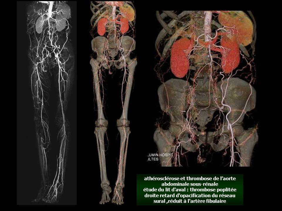 athérosclérose et thrombose de l'aorte abdominale sous-rénale étude du lit d aval : thrombose poplitée droite retard d opacification du réseau sural,réduit à l artère fibulaire