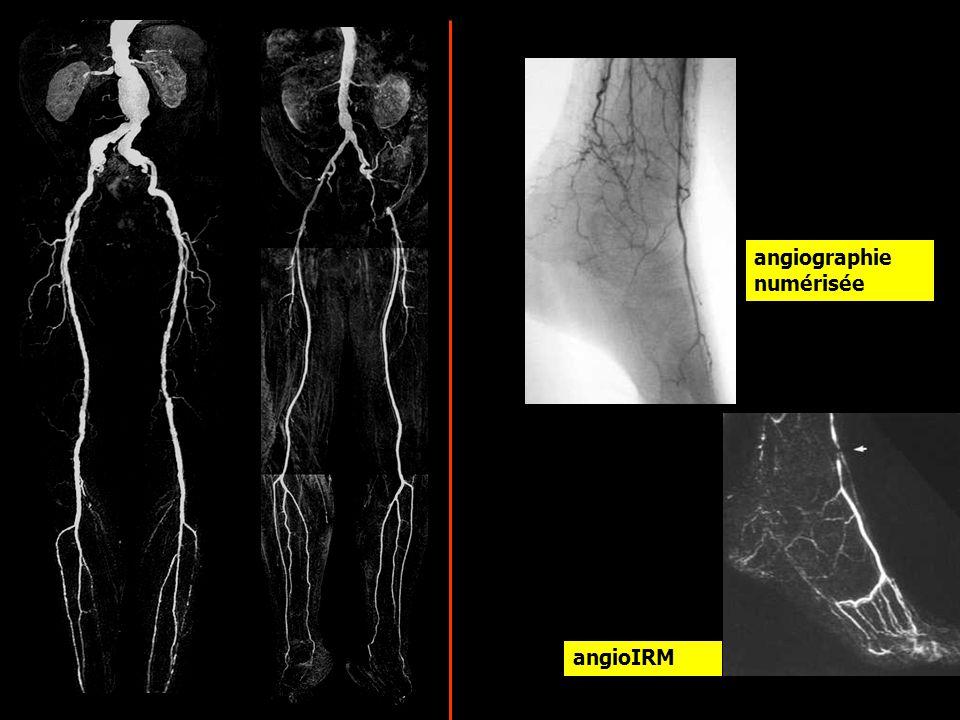 angioIRM angiographie numérisée