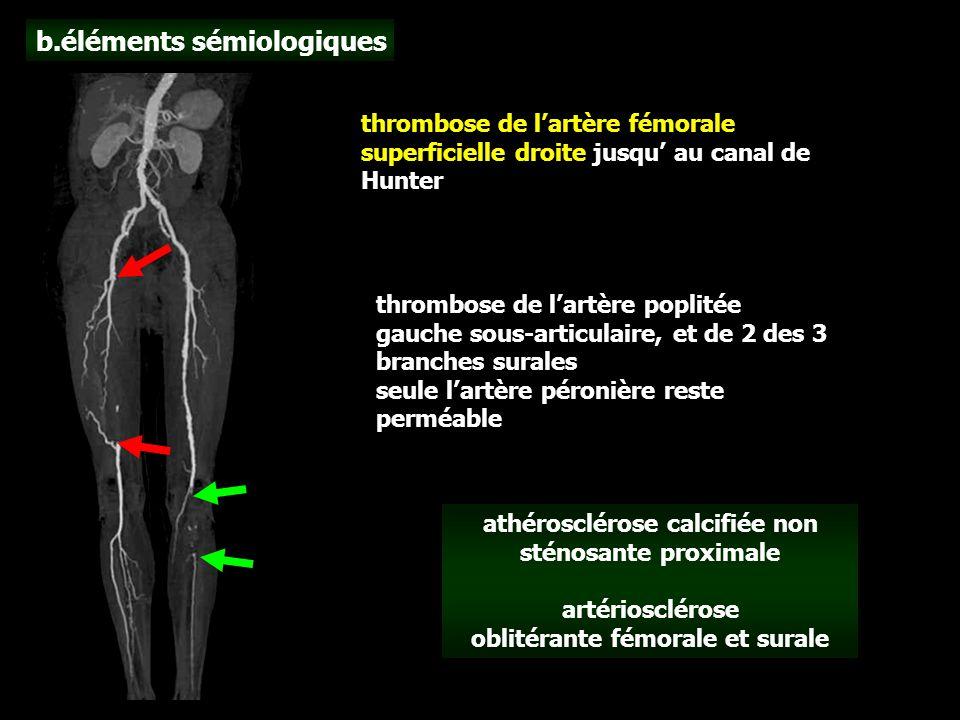 b.éléments sémiologiques thrombose de l'artère fémorale superficielle droite jusqu' au canal de Hunter thrombose de l'artère poplitée gauche sous-articulaire, et de 2 des 3 branches surales seule l'artère péronière reste perméable athérosclérose calcifiée non sténosante proximale artériosclérose oblitérante fémorale et surale