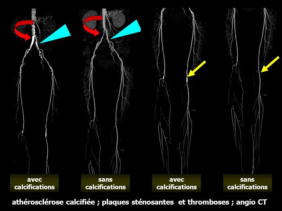 sans calcifications athérosclérose calcifiée ; plaques sténosantes et thromboses ; angio CT avec calcifications sans calcifications