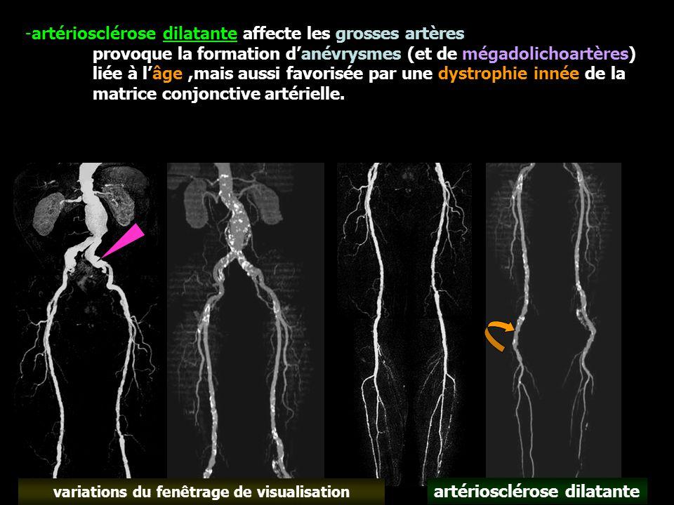 -artériosclérose dilatante affecte les grosses artères provoque la formation d'anévrysmes (et de mégadolichoartères) liée à l'âge,mais aussi favorisée par une dystrophie innée de la matrice conjonctive artérielle.