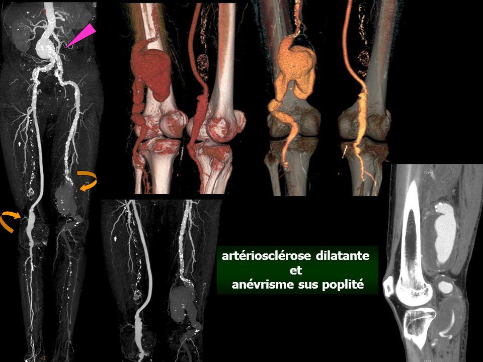Les 3 composantes des artériopathies scléreuses : - athérosclérose - artériosclérose oblitérante - artériosclérose dilatante se combinent souvent chez un même individu, en proportions variables en fonction des différents facteurs de risque ( age, HTA, diabète,dystrophie innée …) avec calcifications sans calcifications avec calcifications sans calcifications angio CT aorto-iliaque et des artères des MI chez le même patient