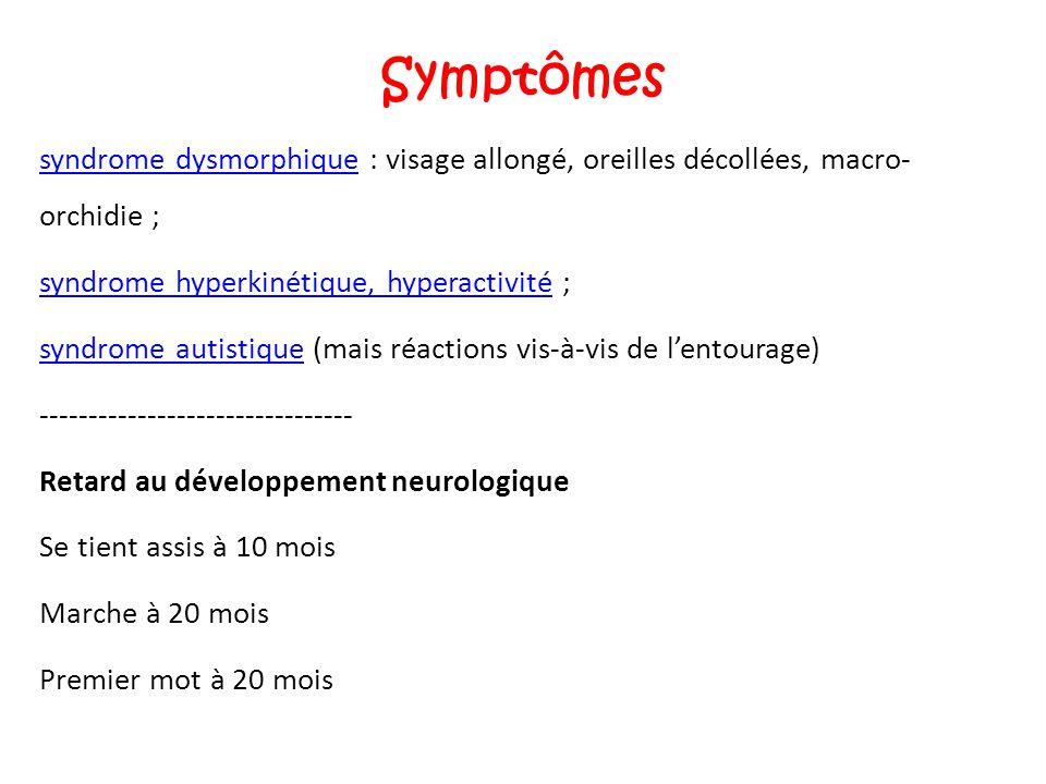 Symptômes syndrome dysmorphiquesyndrome dysmorphique : visage allongé, oreilles décollées, macro- orchidie ; syndrome hyperkinétique, hyperactivitésyn