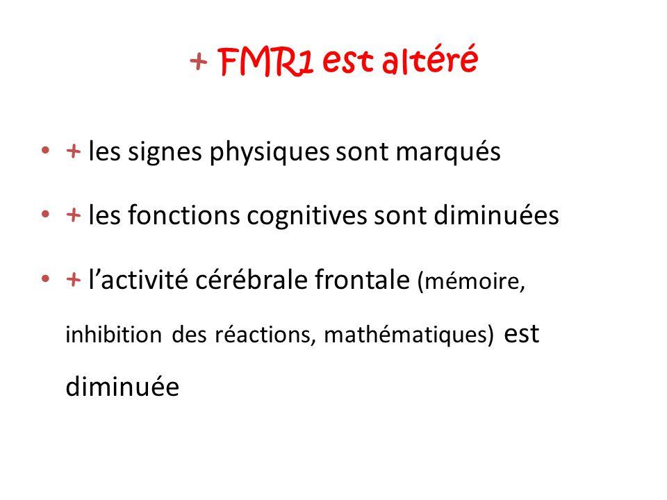 + FMR1 est altéré + les signes physiques sont marqués + les fonctions cognitives sont diminuées + l'activité cérébrale frontale (mémoire, inhibition d