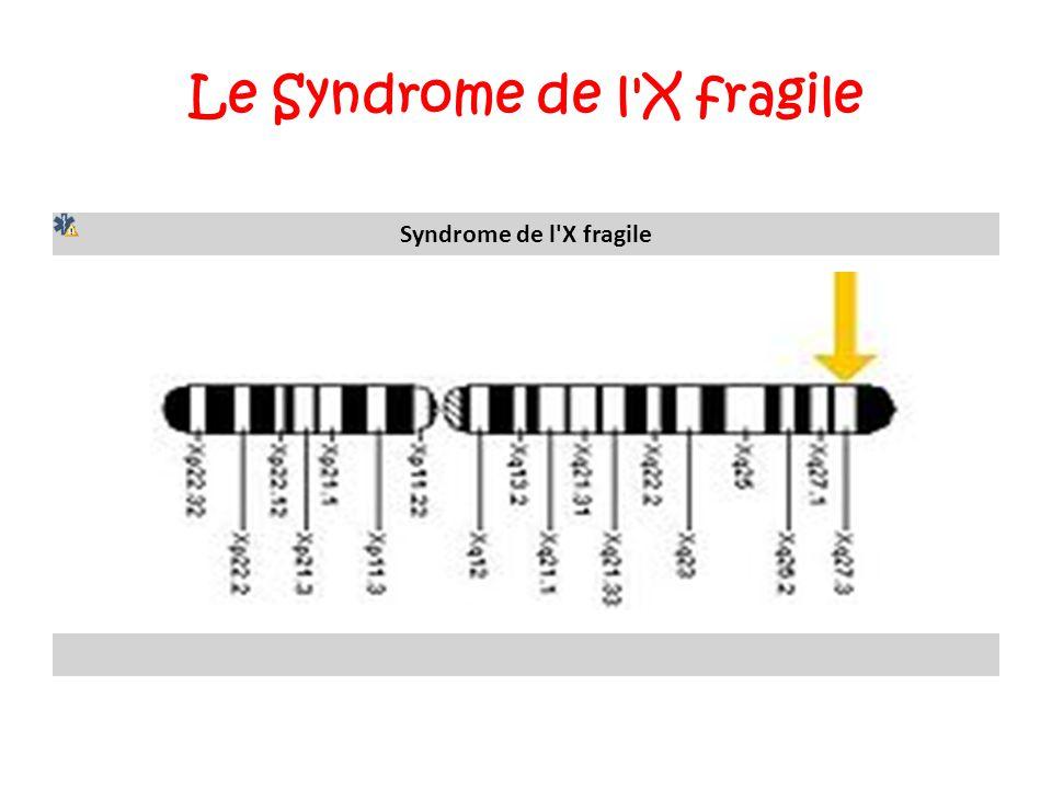 Le Syndrome de l'X fragile Syndrome de l'X fragile Localisation du gène FMR1.FMR1 309550