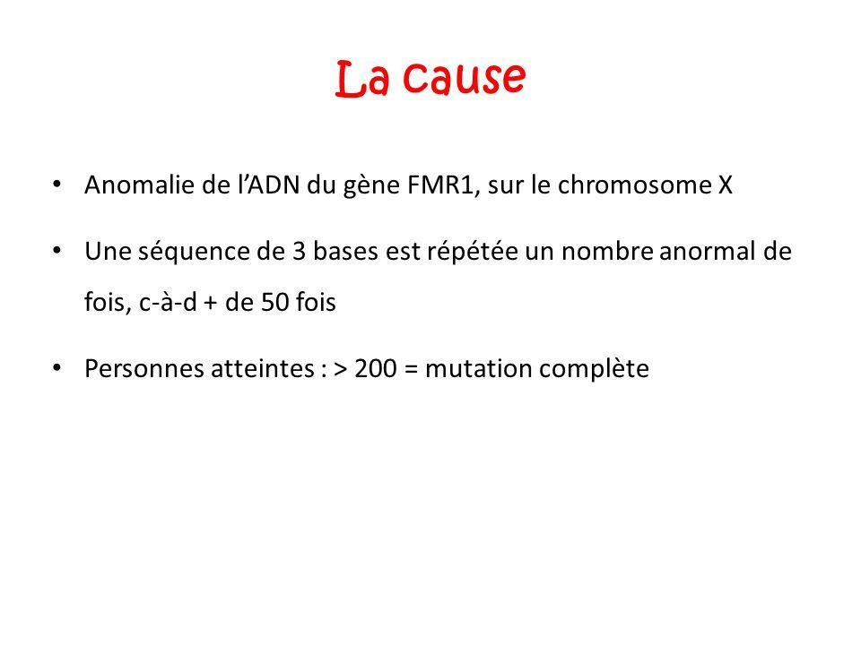 La cause Anomalie de l'ADN du gène FMR1, sur le chromosome X Une séquence de 3 bases est répétée un nombre anormal de fois, c-à-d + de 50 fois Personn
