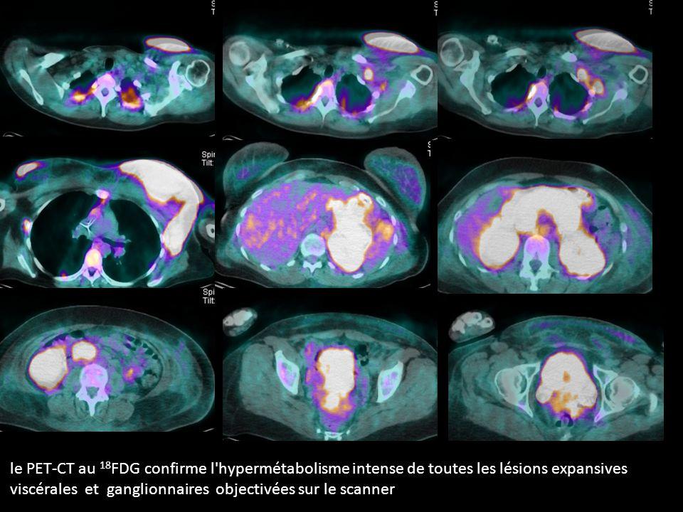 le PET-CT au 18 FDG confirme l hypermétabolisme intense de toutes les lésions expansives viscérales et ganglionnaires objectivées sur le scanner