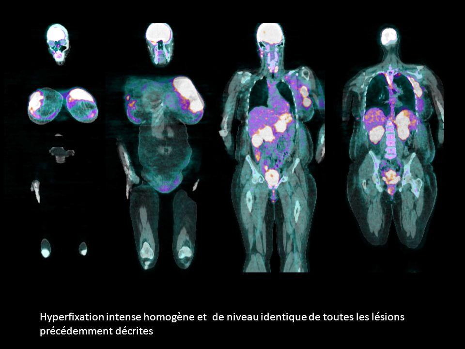 Hyperfixation intense homogène et de niveau identique de toutes les lésions précédemment décrites
