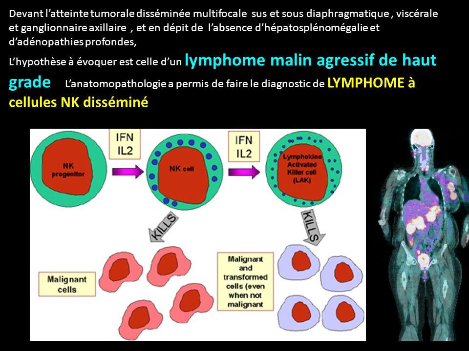 Devant l'atteinte tumorale disséminée multifocale sus et sous diaphragmatique, viscérale et ganglionnaire axillaire, et en dépit de l'absence d'hépatosplénomégalie et d'adénopathies profondes, L'hypothèse à évoquer est celle d'un lymphome malin agressif de haut grade L'anatomopathologie a permis de faire le diagnostic de LYMPHOME à cellules NK disséminé