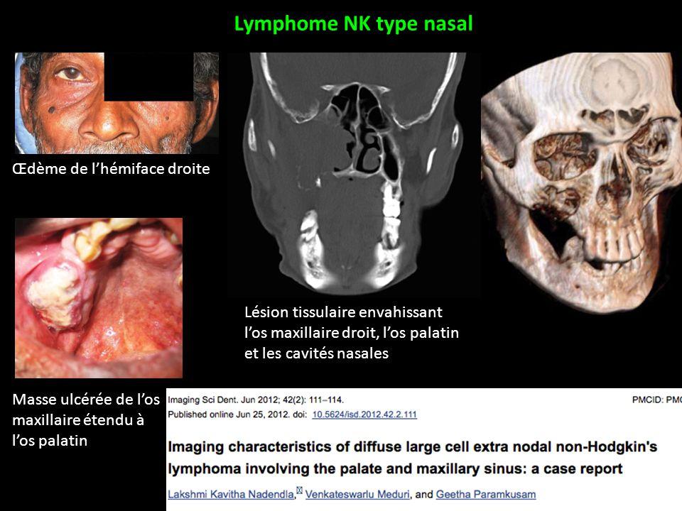 Lymphome NK type nasal Œdème de l'hémiface droite Masse ulcérée de l'os maxillaire étendu à l'os palatin Lésion tissulaire envahissant l'os maxillaire droit, l'os palatin et les cavités nasales