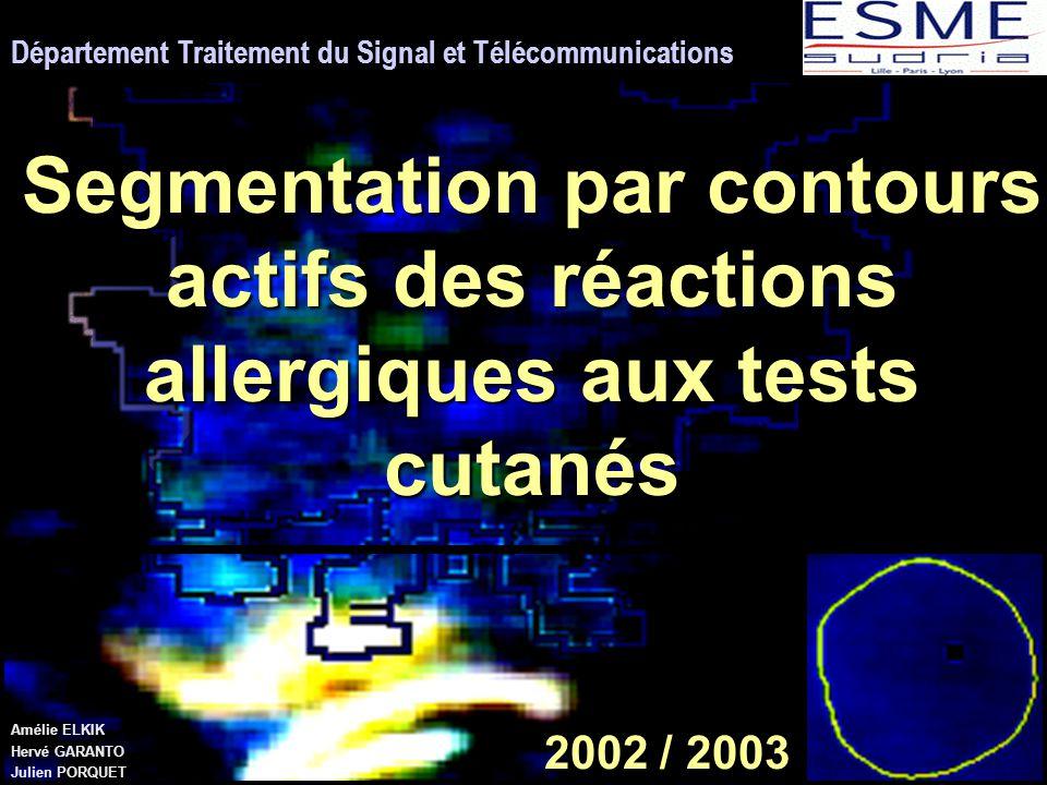 2002 / 2003 Département Traitement du Signal et Télécommunications Segmentation par contours actifs des réactions allergiques aux tests cutanés Amélie