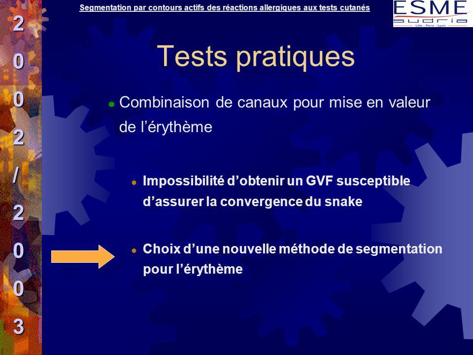 Tests pratiques  Combinaison de canaux pour mise en valeur de l'érythème Impossibilité d'obtenir un GVF susceptible d'assurer la convergence du snake