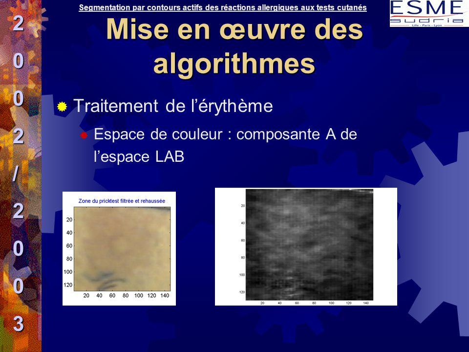  Traitement de l'érythème  Espace de couleur : composante A de l'espace LAB Segmentation par contours actifs des réactions allergiques aux tests cut