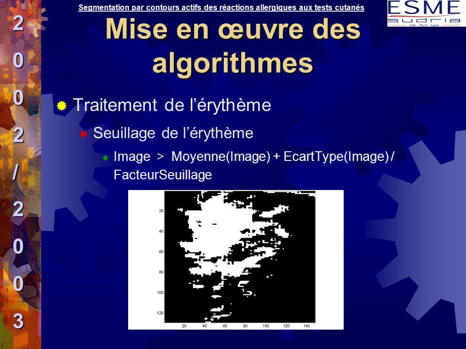  Traitement de l'érythème  Seuillage de l'érythème  Image > Moyenne(Image) + EcartType(Image) / FacteurSeuillage Segmentation par contours actifs d
