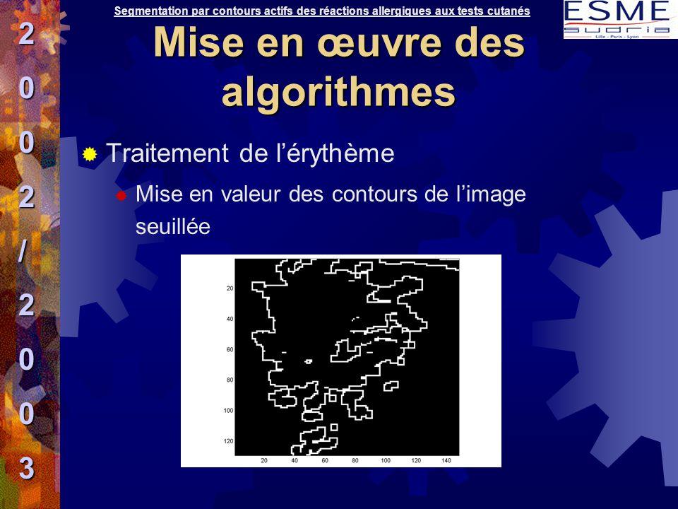  Traitement de l'érythème  Mise en valeur des contours de l'image seuillée Segmentation par contours actifs des réactions allergiques aux tests cuta