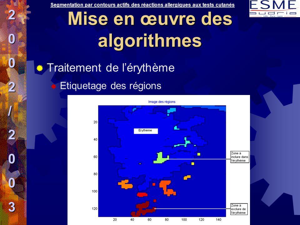 Traitement de l'érythème  Etiquetage des régions Segmentation par contours actifs des réactions allergiques aux tests cutanés2002/2003 Mise en œuvr