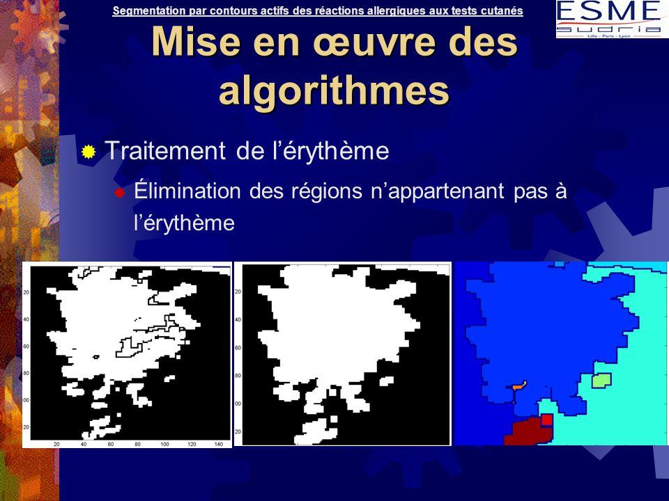  Traitement de l'érythème  Élimination des régions n'appartenant pas à l'érythème Segmentation par contours actifs des réactions allergiques aux tes