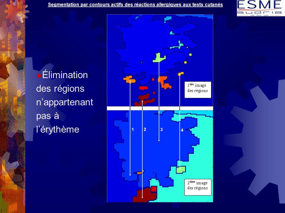 Segmentation par contours actifs des réactions allergiques aux tests cutanés  Élimination des régions n'appartenant pas à l'érythème
