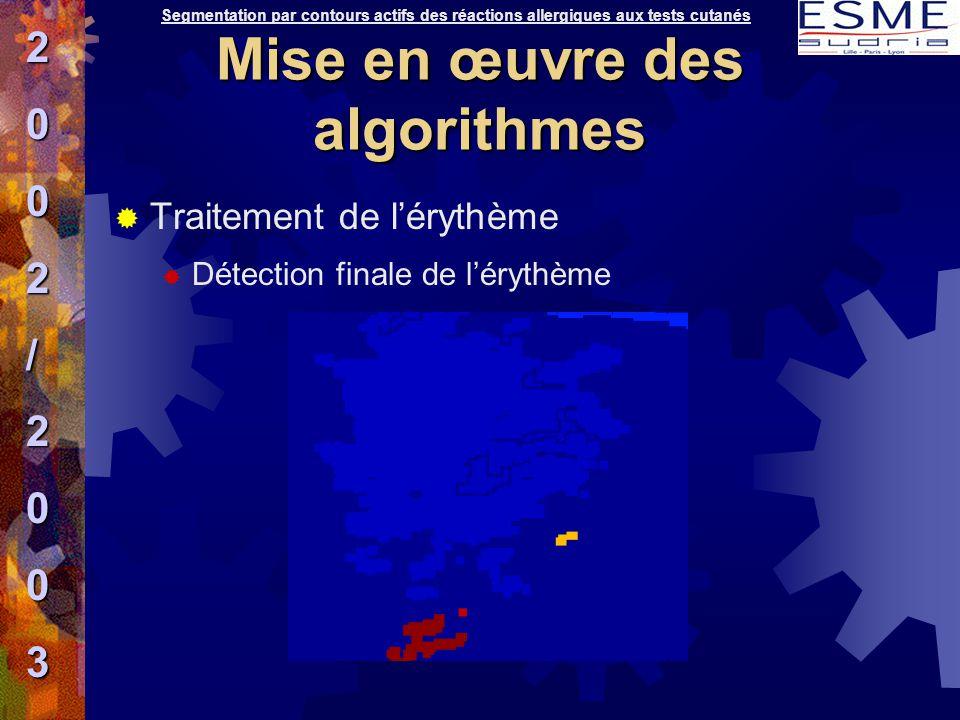  Traitement de l'érythème  Détection finale de l'érythème Segmentation par contours actifs des réactions allergiques aux tests cutanés2002/2003 Mise