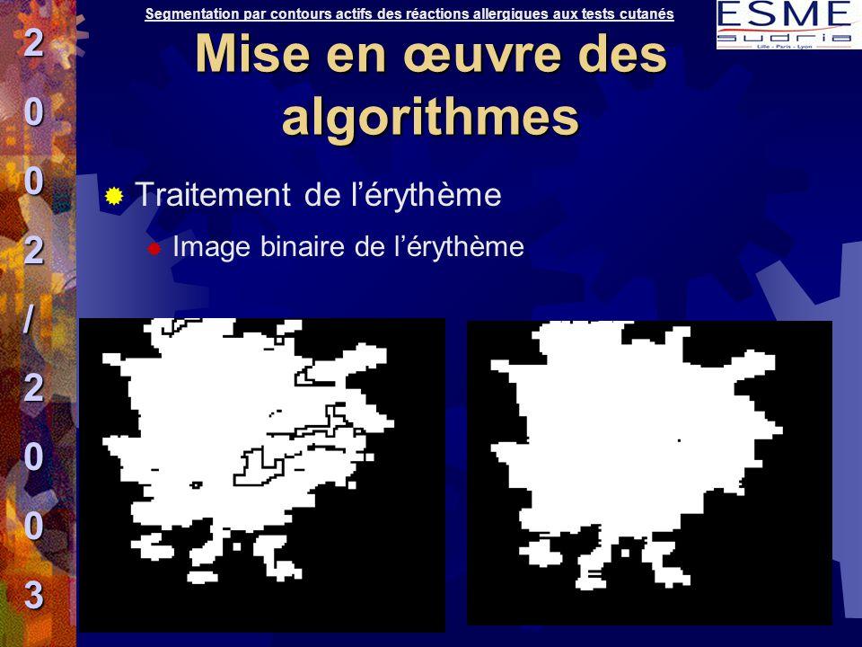  Traitement de l'érythème  Image binaire de l'érythème Segmentation par contours actifs des réactions allergiques aux tests cutanés2002/2003 Mise en