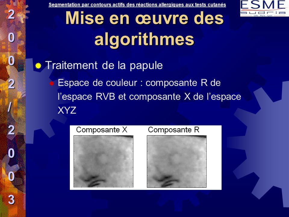  Traitement de la papule  Espace de couleur : composante R de l'espace RVB et composante X de l'espace XYZ Segmentation par contours actifs des réac