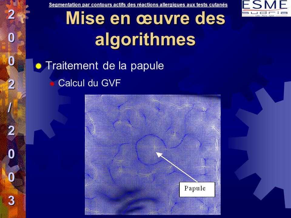  Traitement de la papule  Calcul du GVF Segmentation par contours actifs des réactions allergiques aux tests cutanés2002/2003 Mise en œuvre des algo
