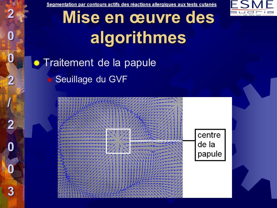  Traitement de la papule  Seuillage du GVF Segmentation par contours actifs des réactions allergiques aux tests cutanés2002/2003 Mise en œuvre des a