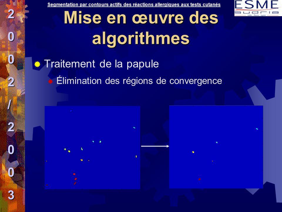  Traitement de la papule  Élimination des régions de convergence Segmentation par contours actifs des réactions allergiques aux tests cutanés2002/20