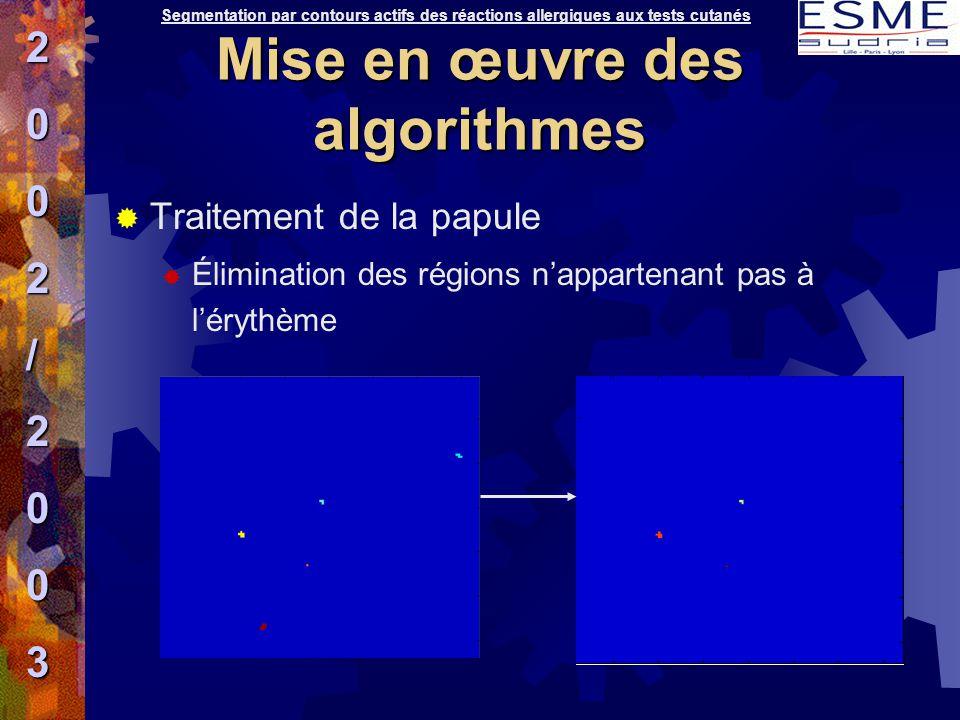  Traitement de la papule  Élimination des régions n'appartenant pas à l'érythème Segmentation par contours actifs des réactions allergiques aux test