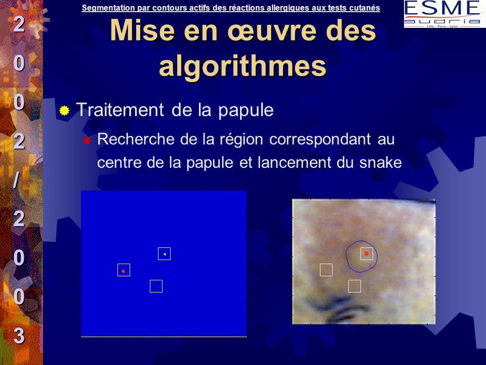  Traitement de la papule  Recherche de la région correspondant au centre de la papule et lancement du snake Segmentation par contours actifs des réa