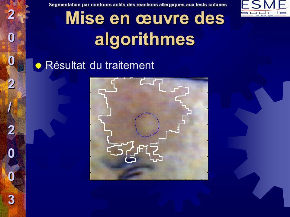  Résultat du traitement Segmentation par contours actifs des réactions allergiques aux tests cutanés2002/2003 Mise en œuvre des algorithmes