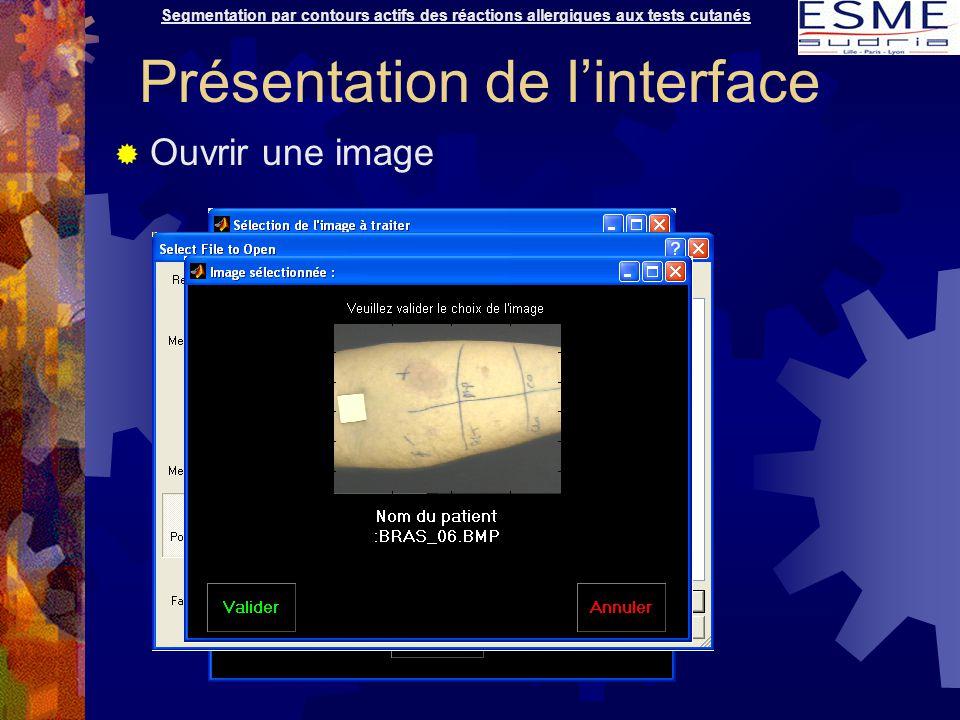  Ouvrir une image Segmentation par contours actifs des réactions allergiques aux tests cutanés Présentation de l'interface