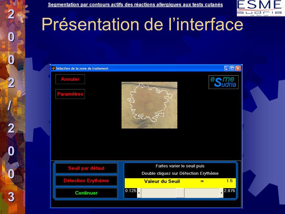 Segmentation par contours actifs des réactions allergiques aux tests cutanés2002/2003 Présentation de l'interface