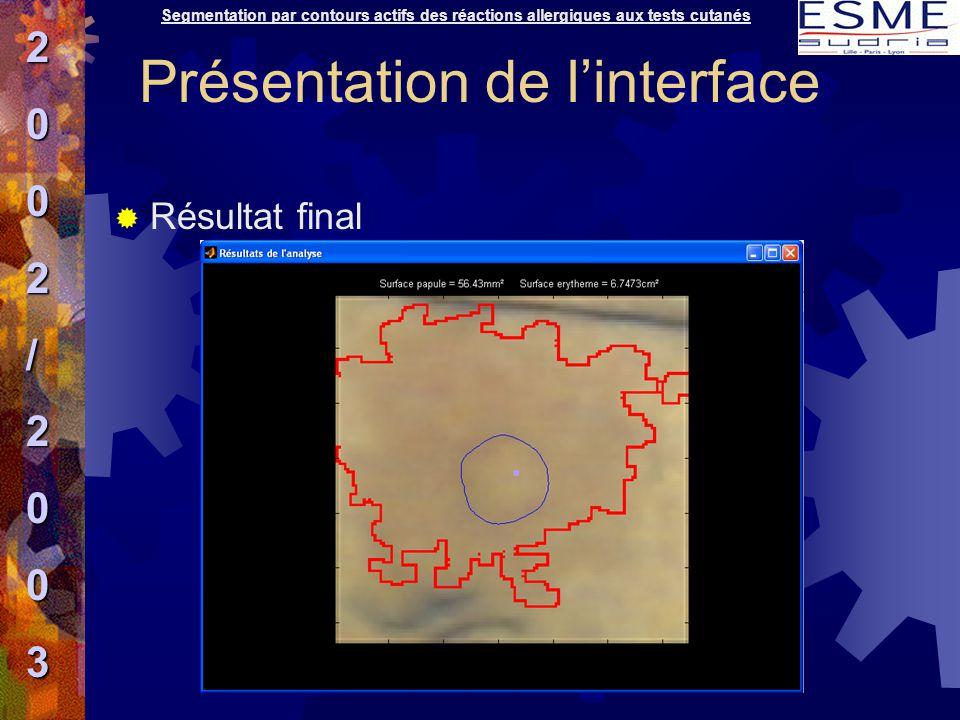  Résultat final Segmentation par contours actifs des réactions allergiques aux tests cutanés2002/2003 Présentation de l'interface