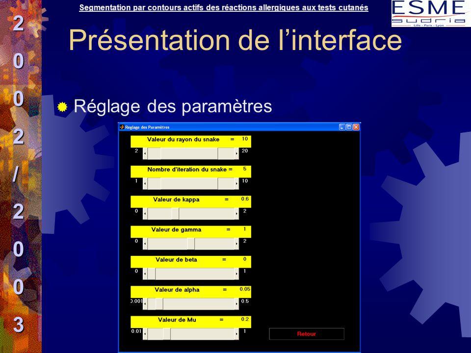  Réglage des paramètres Segmentation par contours actifs des réactions allergiques aux tests cutanés2002/2003 Présentation de l'interface