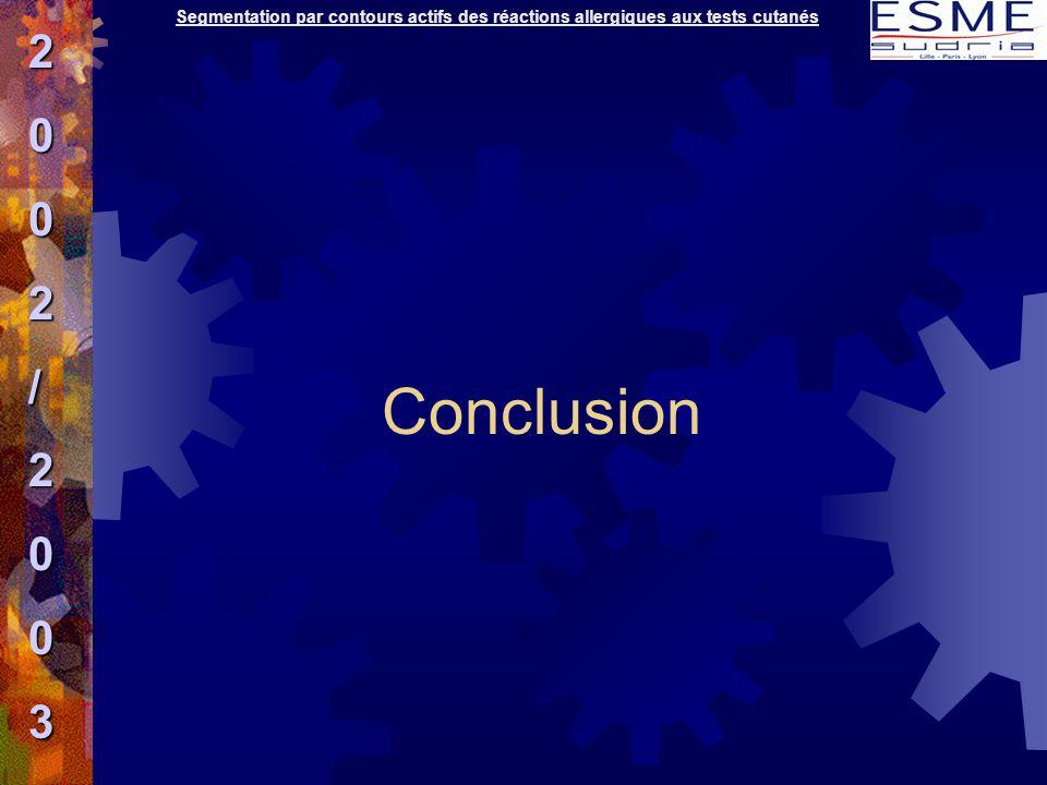 Segmentation par contours actifs des réactions allergiques aux tests cutanés2002/2003 Conclusion