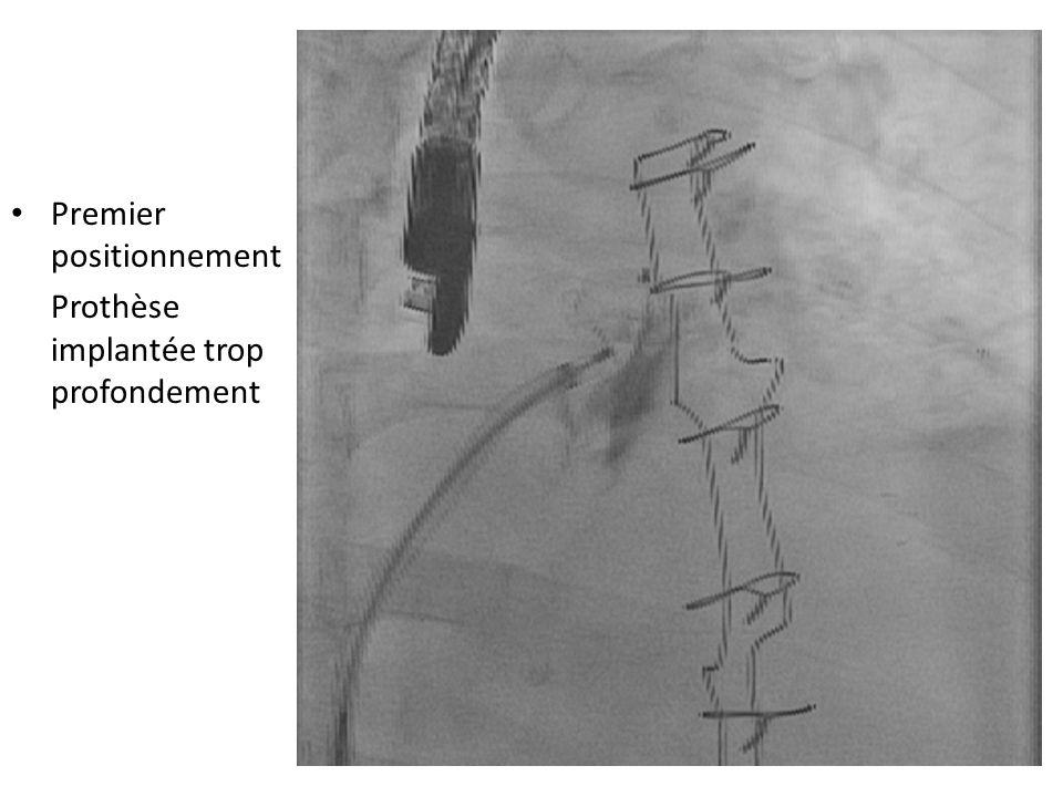 Premier positionnement Prothèse implantée trop profondement