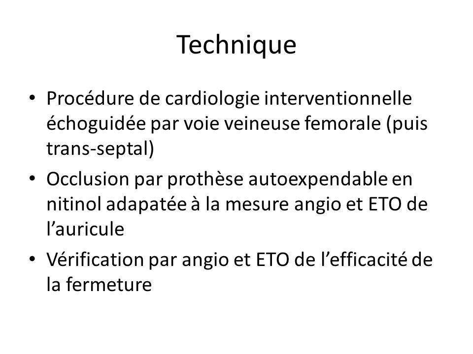 Technique Procédure de cardiologie interventionnelle échoguidée par voie veineuse femorale (puis trans-septal) Occlusion par prothèse autoexpendable e