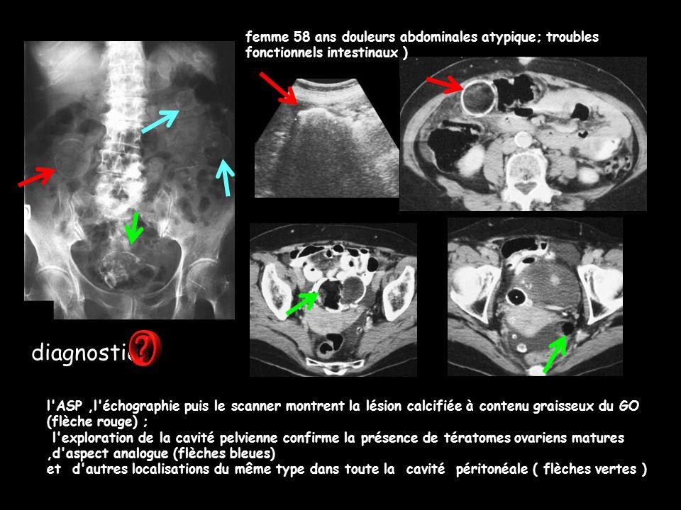 femme 58 ans douleurs abdominales atypique; troubles fonctionnels intestinaux ) l'ASP,l'échographie puis le scanner montrent la lésion calcifiée à con