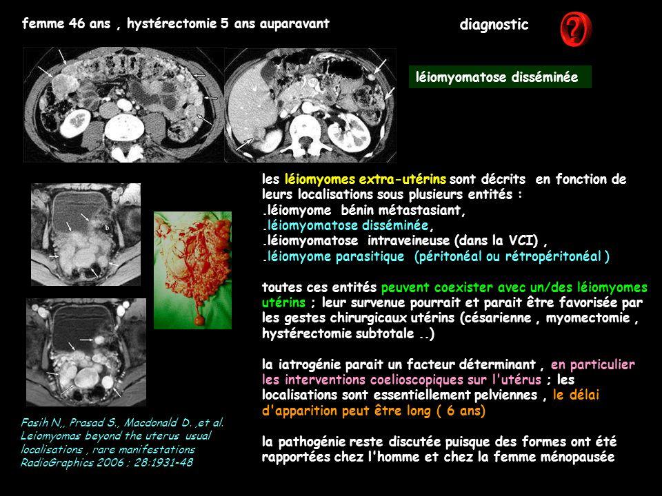 femme 46 ans, hystérectomie 5 ans auparavant diagnostic les léiomyomes extra-utérins sont décrits en fonction de leurs localisations sous plusieurs en