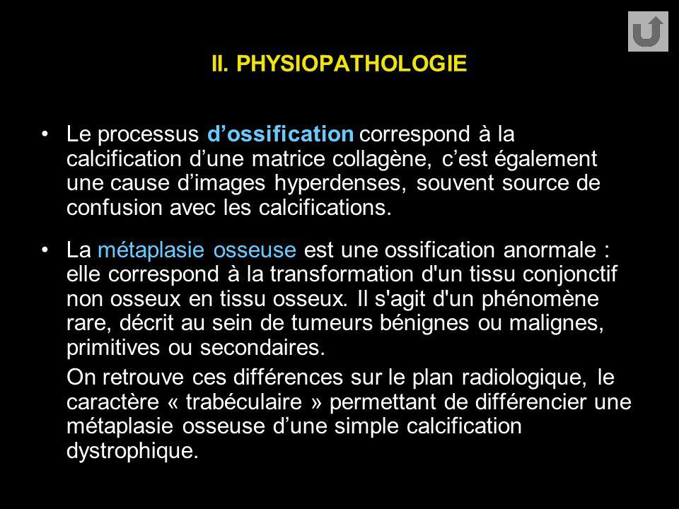 II. PHYSIOPATHOLOGIE Le processus d'ossification correspond à la calcification d'une matrice collagène, c'est également une cause d'images hyperdenses